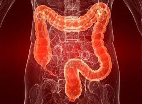 penyebab, gejala dan pengobatan infeksi usus