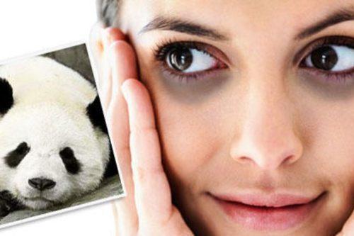 Petua Mudah Hilangkan Eyebag