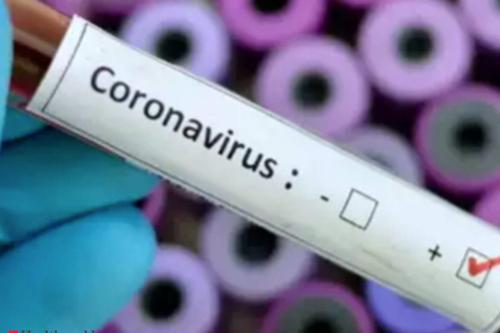 TERKINI : Mangsa Terbaru Positif Koronavirus, Wanita 67 Tahun Warga Malaysia